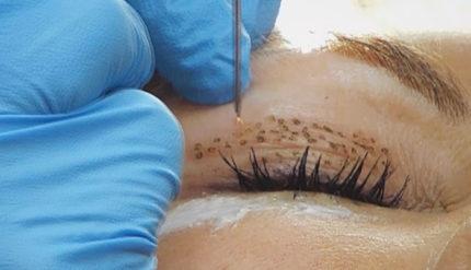 Female receiving spots on her eyelid