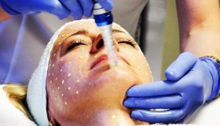 Aesthetic Treatment - Tsedeq Beauty Clinic