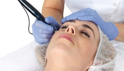 Microneedling Tsedeq Beauty Clinic