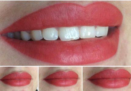 Lips - Tsedeq Beauty Clinic