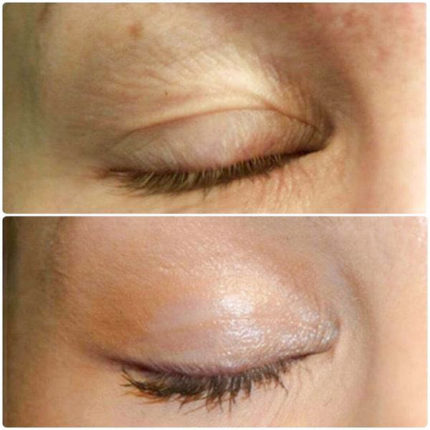 Before and after images of an eye that underwent fibroblast plasma